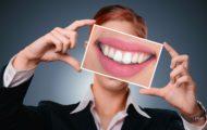 alegerea aparatului dentar